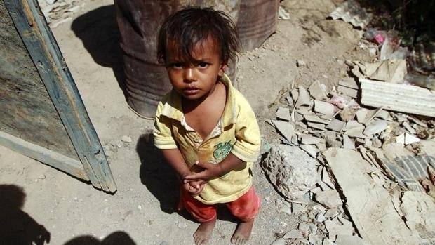 yemen-famine_2